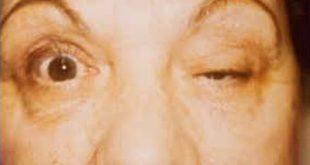 Μυασθένεια Gravis. Μια εκ των πολλών σπανίων παθήσεων. (video)