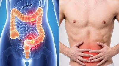 Ο καρκίνος του παχέος εντέρου, ποιους προσβάλλει, πώς γίνεται η διάγνωση και ποια η σωστή διατροφή;