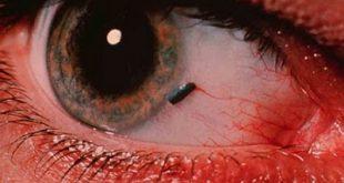 Τι πρέπει να κάνετε αν μπει κάτι στο μάτι σας. Τραυματισμός και πρώτες βοήθειες.