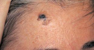 Το μελάνωμα προλαμβάνεται με έγκαιρη διάγνωση. Τα τελευταία χρόνια ανησυχητικά αυξάνονται τα κρούσματα μελανώματος στην Ελλάδα.