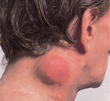 Τι είναι το λέμφωμα; Ποια τα συμπτώματα; Παγκόσμια Ημέρα Ευαισθητοποίησης για το Λέμφωμα (video)
