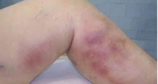 Τι προκαλεί την θρομβοφλεβίτιδα και ποια τα συμπτώματα της; Πώς αντιμετωπίζεται;