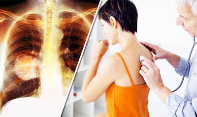 Ο καρκίνος του πνεύμονα συχνά δεν παρουσιάζει συμπτώματα παρά μόνο αφού φτάσει σε προχωρημένο στάδιο