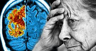 Ένα πολλά υποσχόμενο φάρμακο για το Αλτσχάιμερ αποτυγχάνει, απογοητεύοντας ερευνητές και ασθενείς