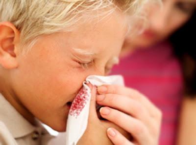 Γιατί ματώνει η μύτη; Τι πρέπει να κάνουμε στην ρινορραγία; (video)