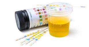 Ποια η προετοιμασία για τη σωστή λήψη και αποστολή των ούρων για μικροβιολογική εξέταση και καλλιέργεια;