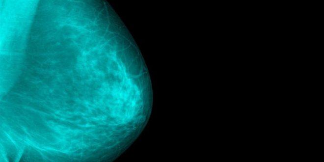 Καρκίνος του μαστού: Ο ρόλος των αποβολών
