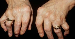 Αρθρίτιδες. Οστεοαρθρίτιδα, ρευματοειδής αρθρίτιδα, ποδάγρα ή ουρική αρθρίτιδα. Τι πρέπει να κάνετε;