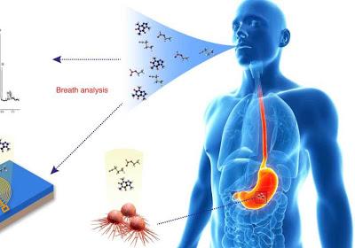 Τεστ αναπνοής ανιχνεύει καρκίνο του οισοφάγου και του στομάχου
