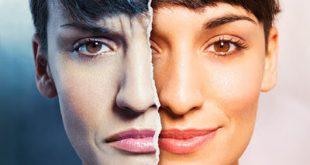 Παγκόσμια ημέρα Διπολικής διαταραχής, Μανιοκατάθλιψης, 30 Μαρτίου