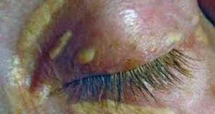 Έχετε κίτρινες πλάκες στα βλέφαρα; Λέγονται ξανθελάσματα και συνήθως οφείλονται στην χοληστερίνη