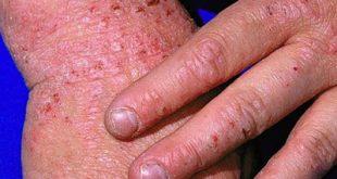 Βοηθήστε το δέρμα σας από το έκζεμα (ατοπική δερματίτιδα)