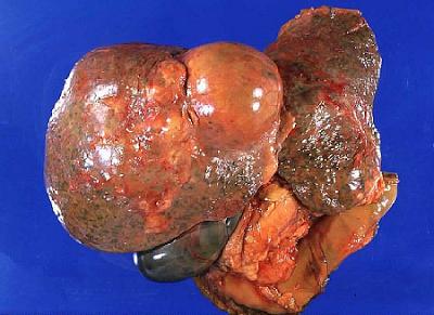 Καρκίνος ήπατος (συκώτι). Σε τι οφείλεται, ποια τα συμπτώματα και ποια η θεραπεία; Υπάρχει πρόληψη;