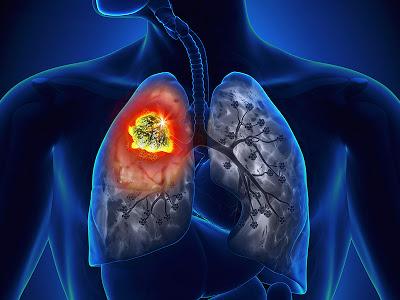 Καρκίνος του πνεύμονα: νέα θεραπεία δίνει ελπίδα σε ασθενείς
