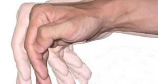 Νόσος Πάρκινσον. Τρέμουλο στα χέρια, αργείτε να δέσετε τα κορδόνια σας, πρόβλημα στην ισορροπία, την ομιλία;