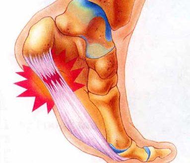 Πόνος στη φτέρνα, πελματιαία απονεύρωση, άκανθα πτέρνας. Θεραπεία και ασκήσεις για το σπίτι