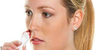 Τι πρέπει να κάνετε όταν ματώσει και τρέχει αίμα η μύτη; Πρώτες βοήθειες.