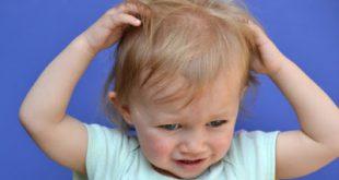 Φθείρες (ψείρες) και κόνιδα στο κεφάλι. Αντιμετώπιση και πρόληψη με φυσικά μέσα