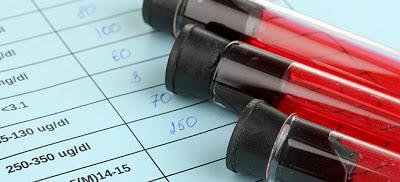 Έρχονται νέοι περιορισμοί στις διαγνωστικές εξετάσεις