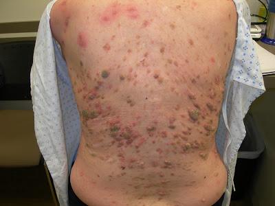 Τι είναι η σμηγματορροϊκή υπερκεράτωση, που μπορεί να έχετε στο δέρμα σας; Πόσο επικίνδυνη είναι και πώς αφαιρείται;