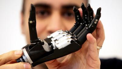 Tο πρώτο βιονικό χέρι με τεχνητή νοημοσύνη