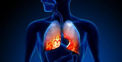 Η συσκευή εισπνοής για τις θεραπείες της Χρόνιας Αποφρακτικής Πνευμονοπάθειας (ΧΑΠ) της Novartis σχετίζεται με λιγότερα κρίσιμα λάθη κατά τον χειρισμό σε σχέση με άλλες συσκευές