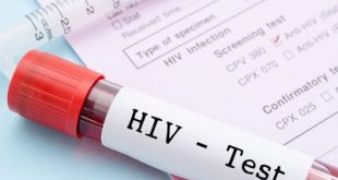 Νέο τεστ ανιχνεύει τον κρυμμένο ιό HIV
