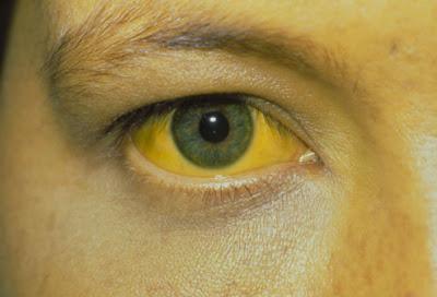 Ηπατίτιδα. Τι είναι, πώς μεταδίδεται, πώς προλαμβάνεται και ποια ηπατίτιδα θεραπεύεται πλήρως;