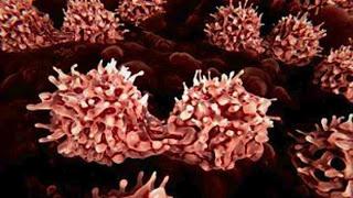 Οι γυναίκες που έκαναν θεραπεία για καρκίνο έχουν σχεδόν 40% μικρότερη πιθανότητα να μείνουν έγκυες