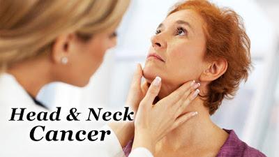 Προσέξτε τα συμπτώματα του Καρκίνου Κεφαλής και Τραχήλου. Ποιοι οι παράγοντες κινδύνου;