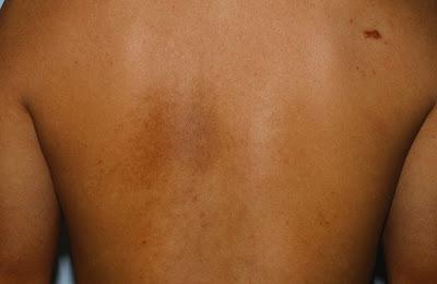 ΕΔΑΕ: Που μπορεί να οφείλεται η επίμονη φαγούρα στη μέση της πλάτης