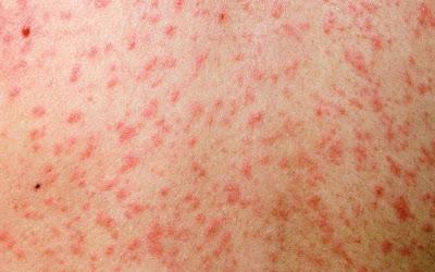 Ποιοι θα πρέπει να κάνουν το εμβόλιο της ιλαράς
