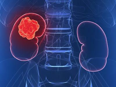 Σημαντικό όφελος στη συνολική επιβίωση και διαρκή ανταπόκριση σε πρωτοθεραπευόμενους ασθενείς με προχωρημένο ή μεταστατικό νεφροκυτταρικό καρκίνωμα