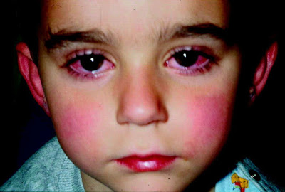 Nόσος ή σύνδρομο Kawasaki, σε παιδιά, με υψηλό πυρετό, επιπεφυκίτιδα, εξάνθημα, πρησμένα χέρια, διάρροια