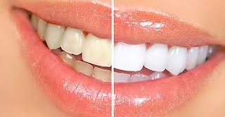 Ο Οδοντιατρικός Συλλόγος Πειραιώς για το λουκέτο που μπήκε σε επιχείρηση που πραγματοποιούσε παράνομα λευκάνσεις δοντιών