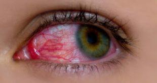 Tο adalimumab έχει τη δυνατότητα να βοηθήσει πολλά παιδιά, με ραγοειδίτιδα να διατηρήσουν την όρασή τους