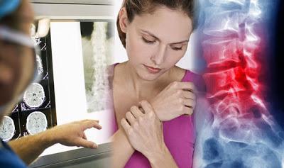 Καρκίνος των οστών. Ποια τα συμπτώματα; Οστεοσάρκωμα, σάρκωμα Ewing, χονδροσάρκωμα