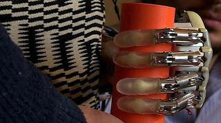 Το 1ο βιονικό χέρι με αίσθηση αφής που μπορεί να φορεθεί εκτός εργαστηρίου