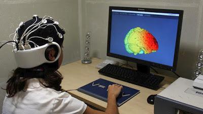 Δοκιμάστηκε ο πρώτος «βηματοδότης» εγκεφάλου σε ασθενείς με Αλτσχάιμερ