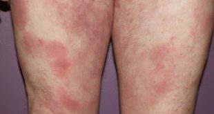 Σπογγοειδής μυκητίαση. Δερματικό λέμφωμα Τ-κυττάρων, μια σπάνια μορφή κακοήθειας non-Hodgkin λεμφώματος