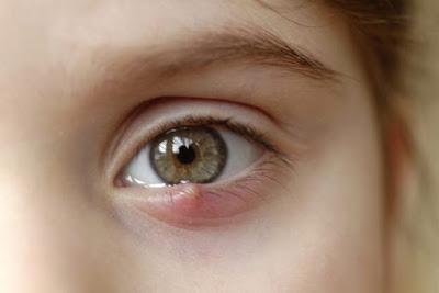 Τι είναι το χαλάζιο στο μάτι και σε τι διαφέρει από το κριθαράκι; Τι χρειάζεται να γίνει για να προληφθεί η υποτροπή;