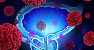 Τεχνητή νοημοσύνη για τη διάγνωση του καρκίνου του προστάτη