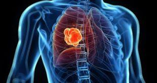 Tι συμβαίνει, ξαφνικά και αρχίζει να αναπτύσσεται ένας καρκινικός όγκος, στο σώμα μας;