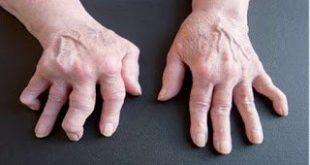 Άρνηση αποδοχής και συμβιβασμού με την ασθένεια: Το πρώτο συναίσθημα του ρευματοπαθούς