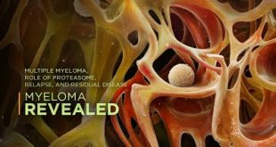 Εγκριση για τη δενοσουμάμπη, για την πρόληψη των σκελετικών συμβαμάτων, οστικών μεταστάσεων και σε ασθενείς με πολλαπλό μυέλωμα