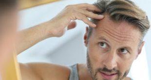 Μεταμόσχευση μαλλιών: Η νέα επαναστατική τεχνική FUE