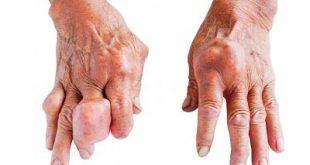 Ουρικό οξύ, ουρική αρθρίτιδα και νεφρική βλάβη; Ποιοι κινδυνεύουν και ποια η σωστή διατροφή