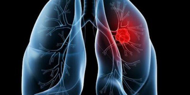 Ο συνδυασμός του nivolumab με χαμηλή δόση ipilimumab μειώνει τον κίνδυνο εξέλιξης της νόσου ή θανάτου σε ασθενείς με καρκίνο του πνεύμονα