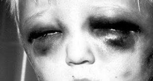 Απαράδεκτες ελλείψεις στη διερεύνηση της παιδικής κακοποίησης. Σε παιδιατρικά νοσοκομεία δεν υπάρχουν ιατροδικαστές!