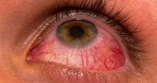 Επιπεφυκίτιδα με τσίμπλα, δάκρυα, πρήξιμο και κόκκινα ερεθισμένα μάτια